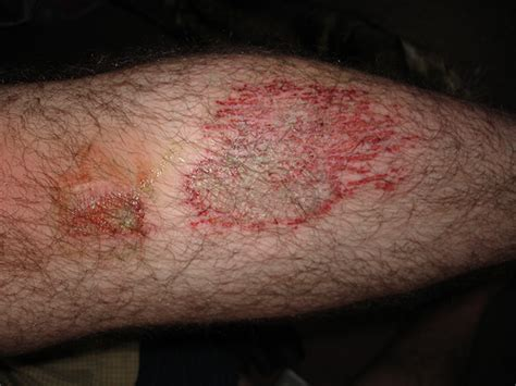 Rug Burn Scar by Rug Burn On Rugs Ideas 28 Images Rug Burn Scar Rugs