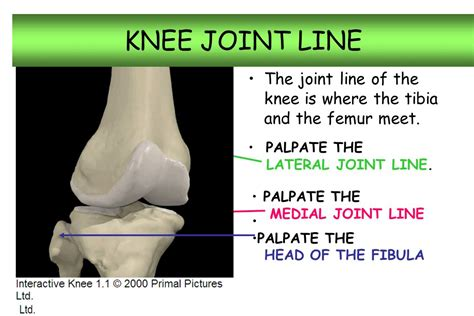 Similiar Medial Joint Line Anatomy Knee Joint Keywords