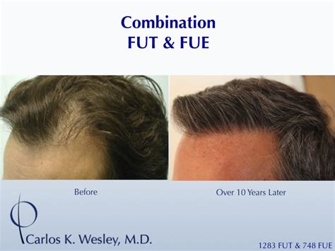 prescreened hair transplant physicians prescreened hair transplant physicians patient details