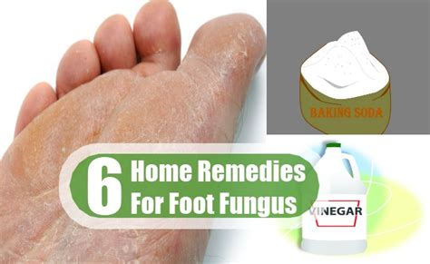 fungal toenail therapy yeast infection tips