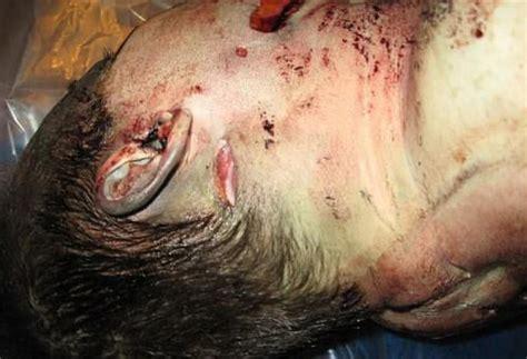 travis alexander photos leaked 54 best autopsies images on pinterest crime scenes