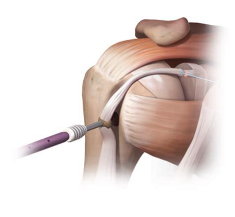 biceps tenodesis recovery table biceps tenodesis recoverybiceps tenodesis recovery