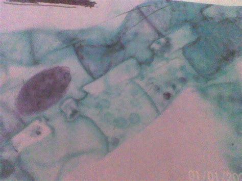 mengenal jamur mikroskopis  jamur makroskopis servis