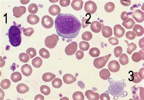 blood film morphology quiz medical laboratory and biomedical science peripheral