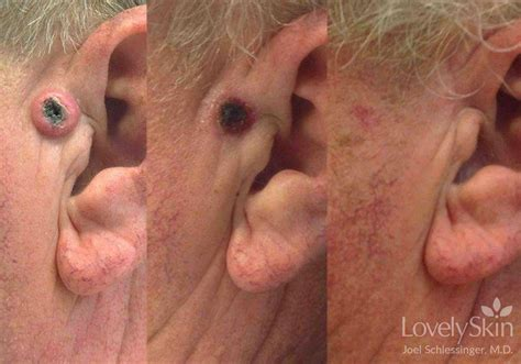 skin cancer treatment before amp after skin specialists
