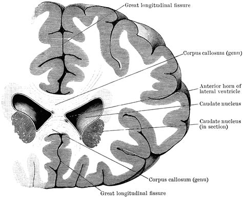 anterior section section through lateral ventricles clipart etc