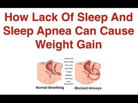 How Sleep Apnea Can Hurt A Relationship by 196 Best Sleep Apnea Images On Exercises