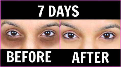 7 Best Treatments For Eye Circles by Remove Circles क ल घ र 6 Magical Remedies 100