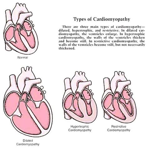 the heart manual my 0061765910 9 best images about cardiomyopathy on heart manual and an