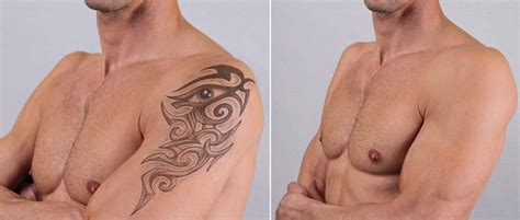 tattoo removal sydney cost sydney s best laser removal affordable