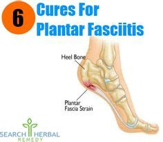 1000 images about plantar fasciitis on