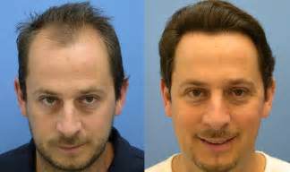 Hair Transplant Fue Vs Fut Hair Transplant Surgery S Answer