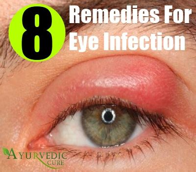 eye infection treatment eye infection herbal remedies treatments and cure usa uk herbal supplements