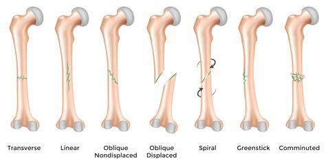 bone treats type of bone fractures recognize broken bones bone disease