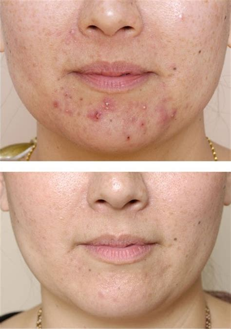 acne on chin acne1