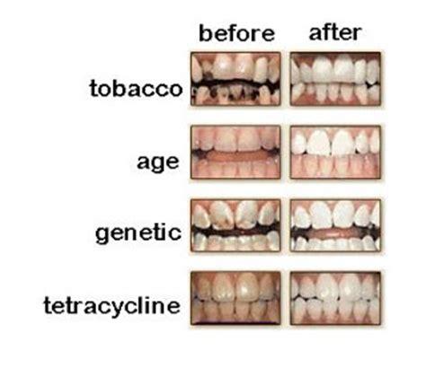 Daftar Pemutihan Gigi cara memutihkan gigi alami