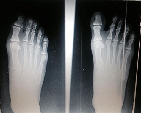 Detoxing After X Rays by Foot X Rays Revealing Structural Changes From