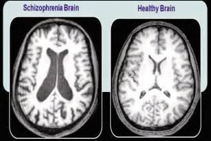 Clockwork Orange Decor Quotes About Schizophrenia Quotes