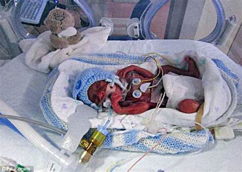 Bayi Prematur Baby Born At 23 Weeks Is Thriving Tiny Lucas Given Just