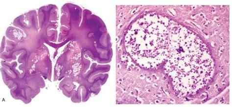 Kedokteran Klinis Ed 6 infeksi bakteri dan jamur pada sistem saraf medicinesia
