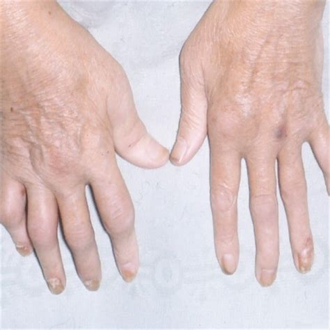 arthritis treatment signs symptoms of psoriatic arthritis how to identify symptoms of psoriatic