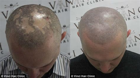 tattooed hair on bald head bald guys are discovering micro scalp pigmentation complex