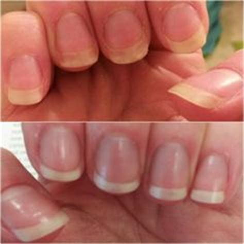 biotin after 3 months nail growth 1000 images about healthy hair skin and nails on
