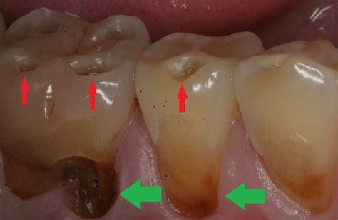 acid reflux acid reflux disease may lead to erosion of teeth paragon dentistry dentist in
