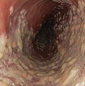 candida alimentazione come curare la candida vaginale vivere al meglio