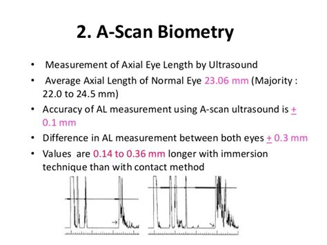 national ocular biometry course nobc 2015 an echoslide