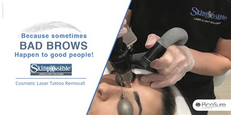 tattoo removal calgary reviews calgary picosure removal skinpossible laser