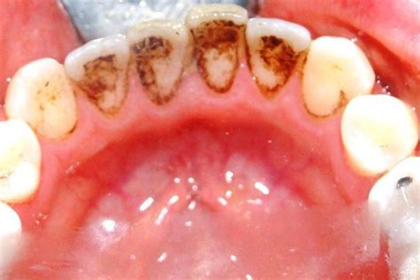 air flow stain removal advance dental care cardiff
