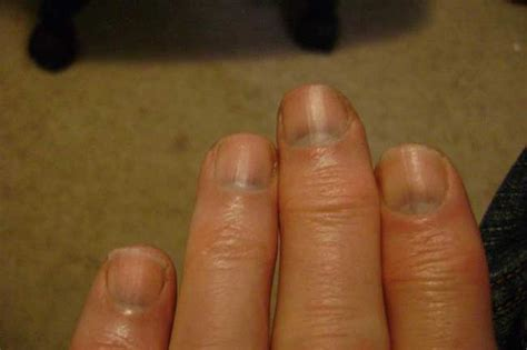 dark nail beds 7 nail problems you should look out for healthy living