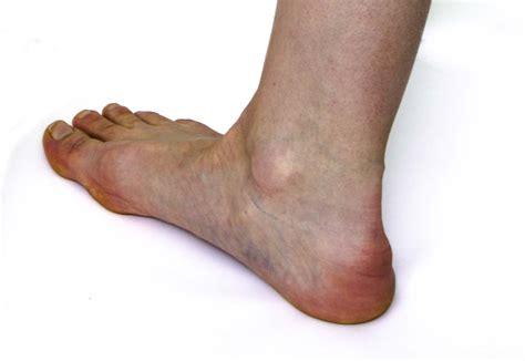 a to heel heel spur heel center of atlanta