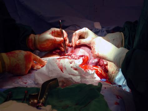 a cesarean section would be performed for cdmr peter d springberg md facp