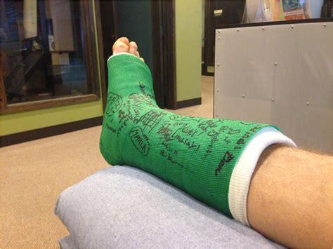 broken leg broken leg images frompo