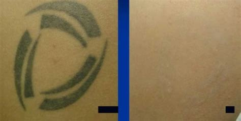 laser tattoo removal nh laser surgery laser surgery laser removal ink
