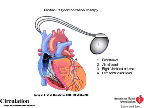 Cardiomyopathy | St. Peter's Health Lvad Clinic