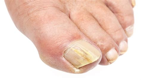 several toenails look skin color under them fungal infections types and treatment