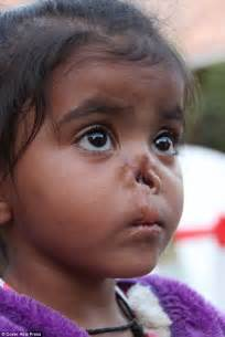 with no nose leaves orphanage for new in