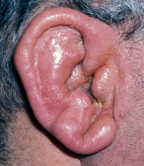 ear infections ear symptoms aches blockage loss discharge
