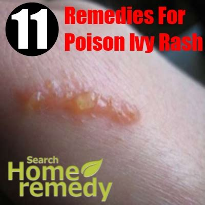 11 excellent home remedies for poison rash search