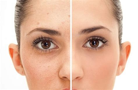 Tips Acne Skin Clear Methods by 10 Home Remedies To Get Clear Skin Tips To Care Health