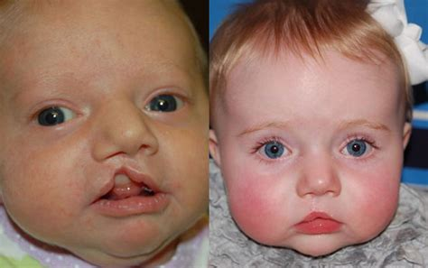 newborn eye color before and after cleft lip and palate before and after photo gallery
