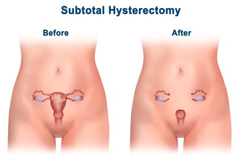 How Is For A Hysterectomy by Fibroid Treatment Center For Menstrual Disorders