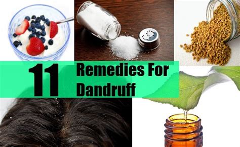 dandruff home remedies and natural cures for common 11 remedies for dandruff natural treatments cure for