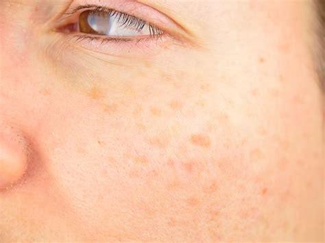 en la piel de 8499925197 remedios caseros para manchas en la piel trucos y consejos
