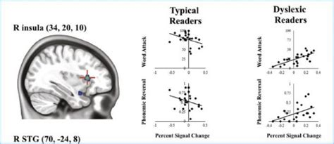 pattern recognition dyslexia new research confirms that dyslexics read better with