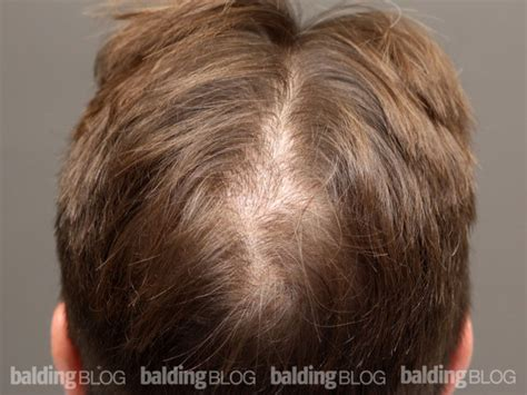 women balding on crown patient results restored crown after 1870 grafts with