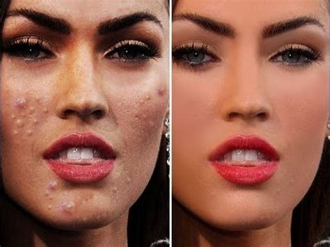 actress with acne my girlfriend has bad acne and it bothers her a lot how